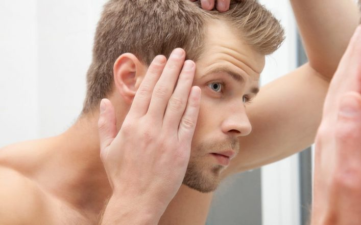 Male Hair Loss Treatment – Facts and Cure for hair loss